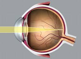 Törési hibákról, és a szemüvegviselési hibáról általában