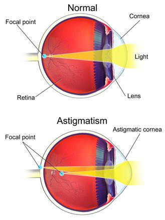 3. látás történik természetes látás-helyreállító rész
