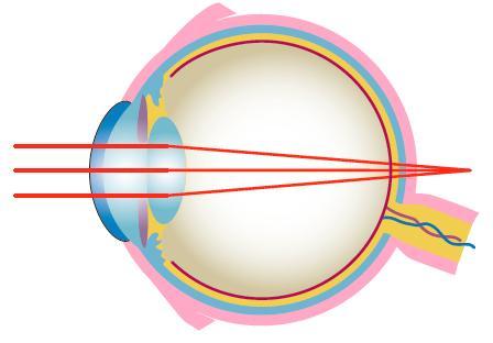 Szentimre Optika